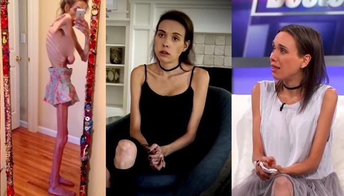 """""""25kg 나갈 때도 있었다"""" 16년 동안 거식증 앓은 여성 (영상)"""